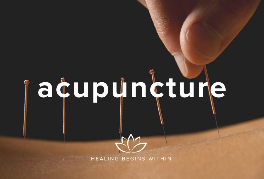 Acupuncture+is+the+new+%28old%29+medicine